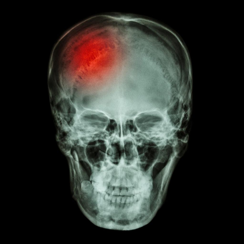 Orange County brain injury lawyer
